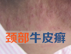 颈部银屑病要怎么治疗