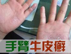 手部银屑病患者应注意什么呢