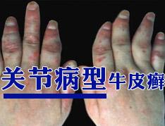 怎样有效消除关节型银屑病的痛苦